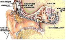 Implante coclear oído medio